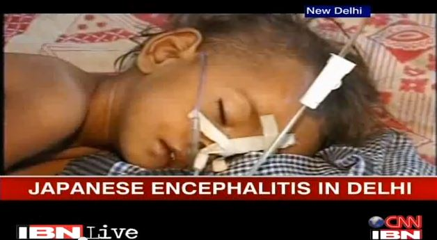 Delhi: 14 cases of Japanese Encephalitis reported